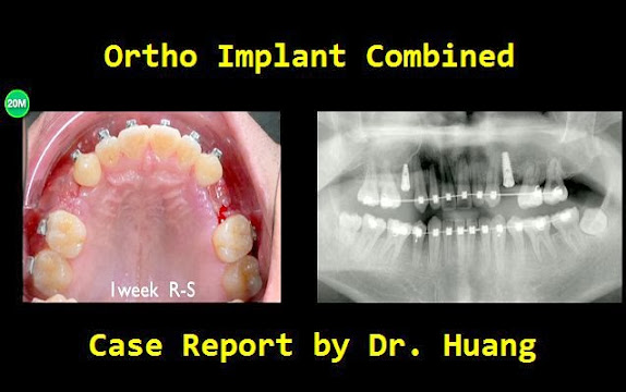 Ortho-Implant-Combined