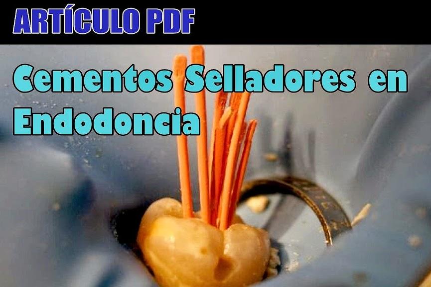 selladores-endodoncia