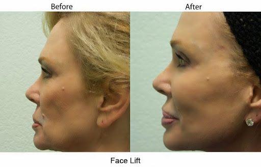 Santa_Barbara_Face_Lift_Surgery_big.jpg