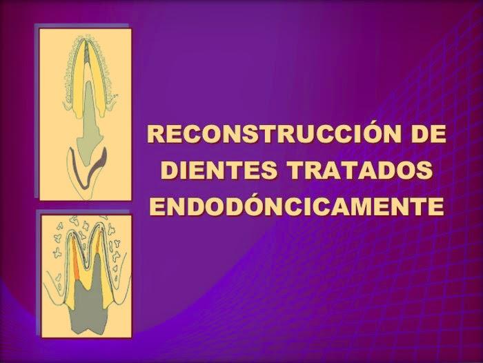 Reconstrucción-Intrarradicular