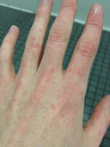 Allergic reaction rash on hands