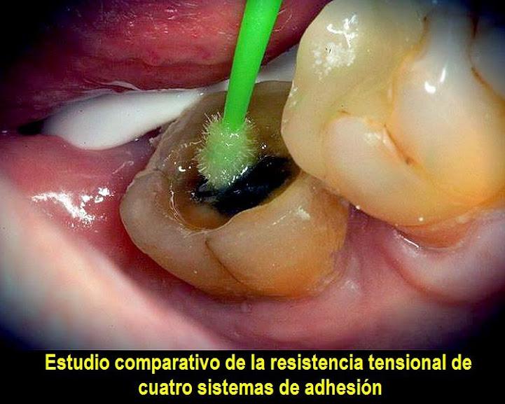 adhesion-dental