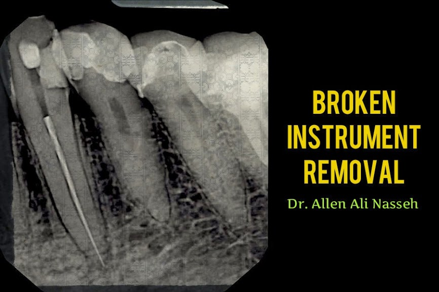 Broken-Instrument-Removal
