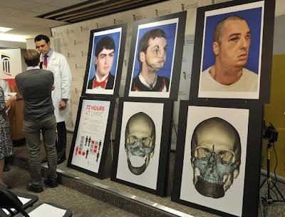 米メリーランド大学、全顔面移植手術を36時間の手術で成功