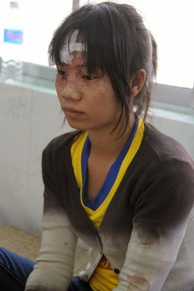 Chị Dương Thị Hồng Nhung bị thương ở vùng mặt đang <a target='_blank' href='http://caythuoc.blogsudo.com'>điều trị</a> tại bệnh viện Hàm Thuận Nam. Ảnh: Hoàng Trường