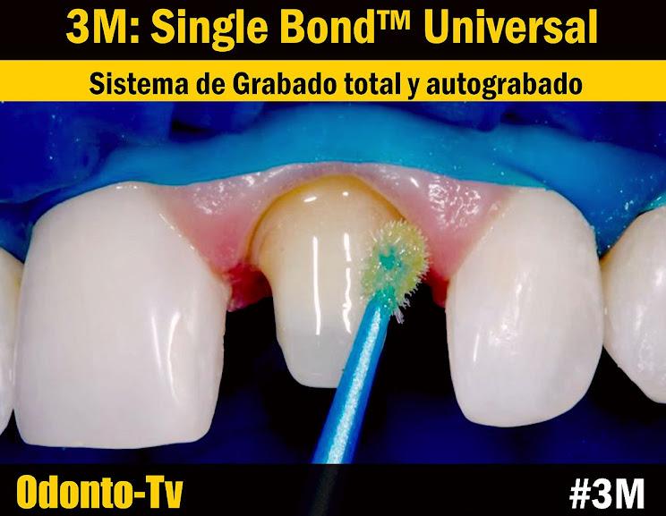 Single-Bond-Universal