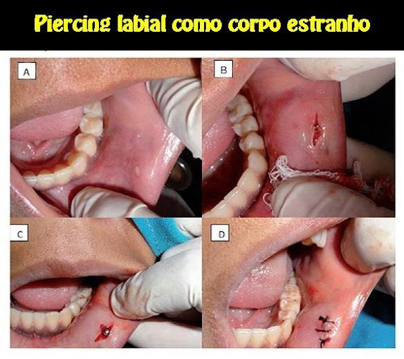 Piercing-labial