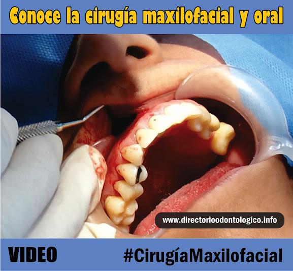cirugía-oral-maxilofacial