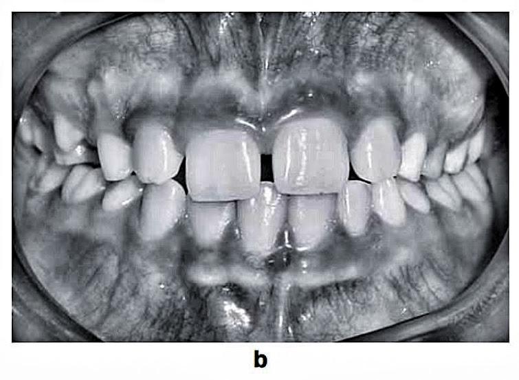 dental-anomalies