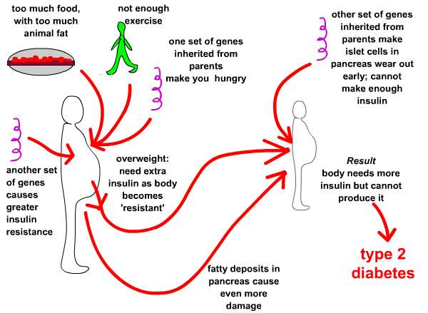 Types of Diabetes: