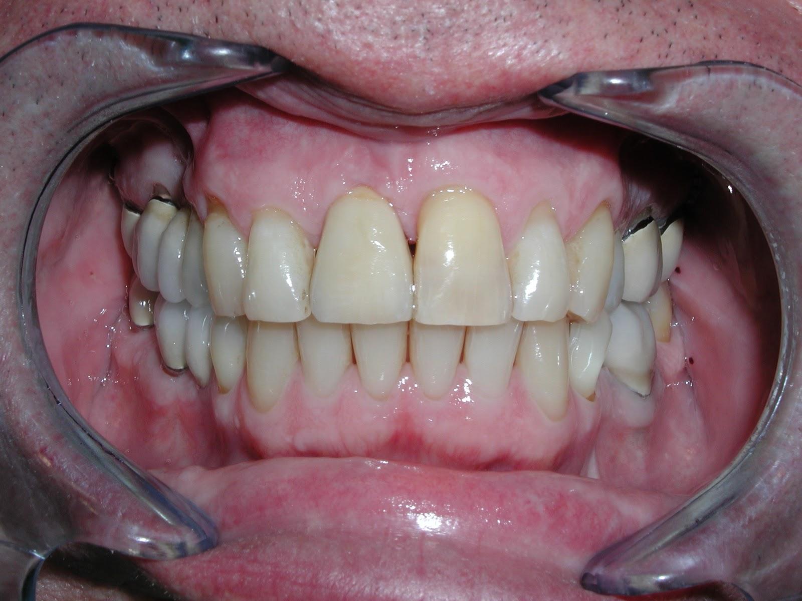 SBO Dental Laboratory: Are Zirconia Crowns Better than PFM?