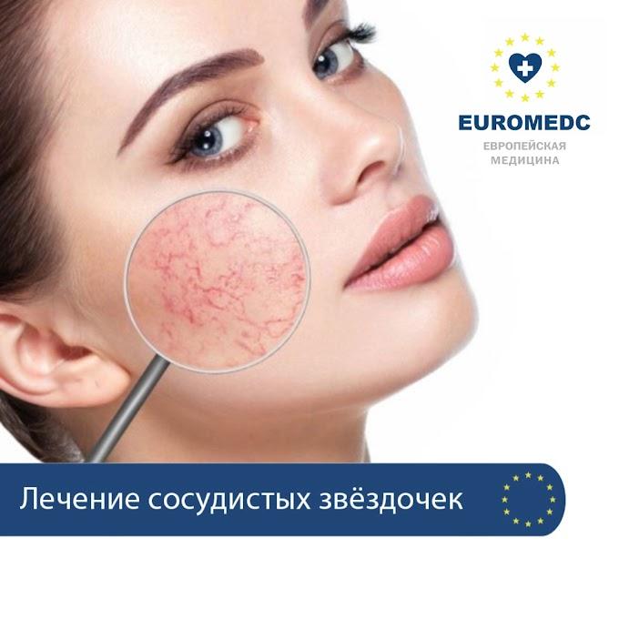 Лечение сосудистой патологии (купероз)