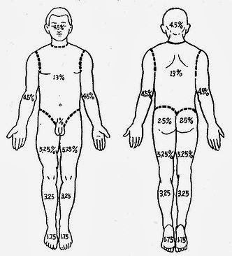 Tbsa Of Burn Total Body Surface Area