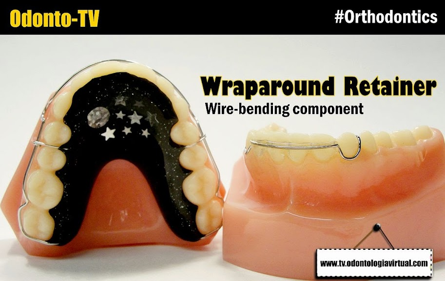 Wraparound-Retainer