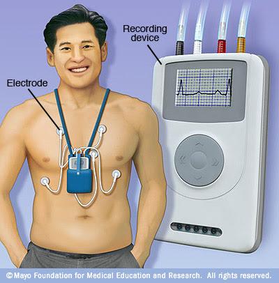 Holter ρυθμού - Καρδιολογικές εξετάσεις στο ιατρείο καρδιολόγου Χριστόδουλου Παπαδόπουλου