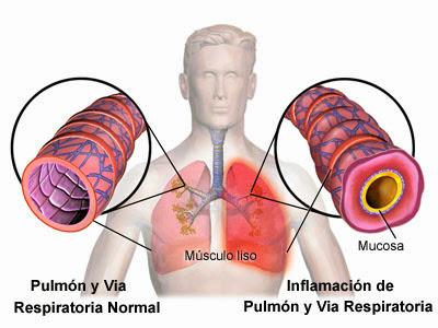 Lo que usted debe saber sobre la Bronquitis