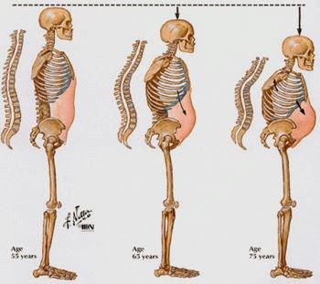 ostematrix kalsium Osteoporosis