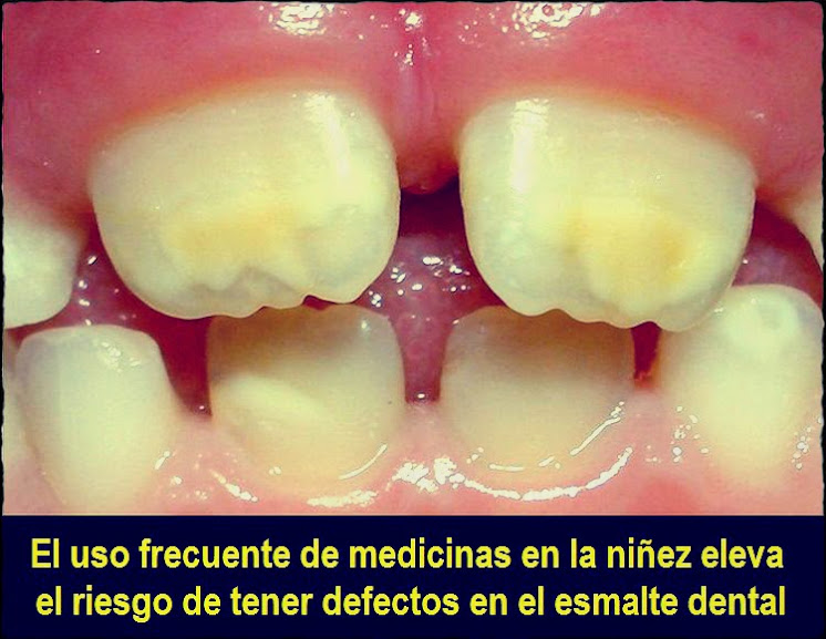 defectos-dentales