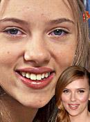 20 Celebrity nose jobs
