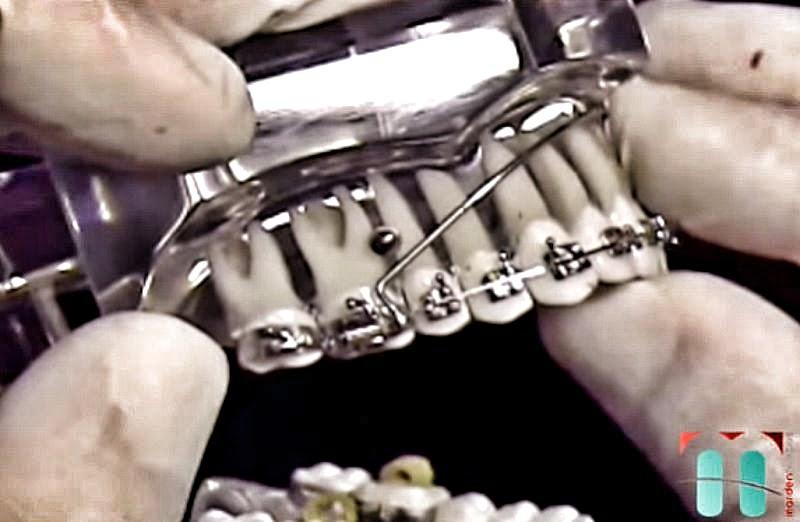 Arco-Auxiliar-ortodontia