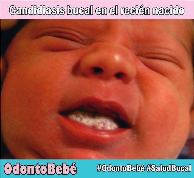 candidiasis-recién-nacido