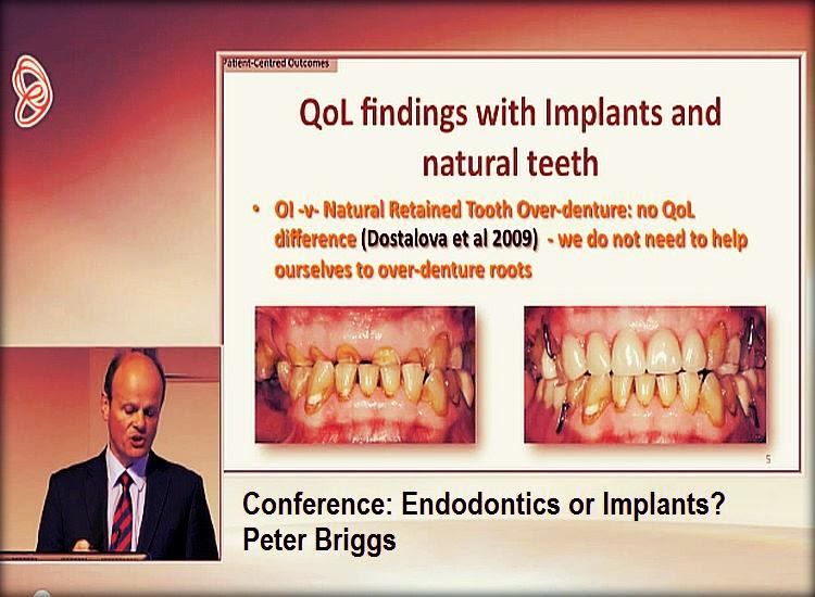 Endodontics-implants