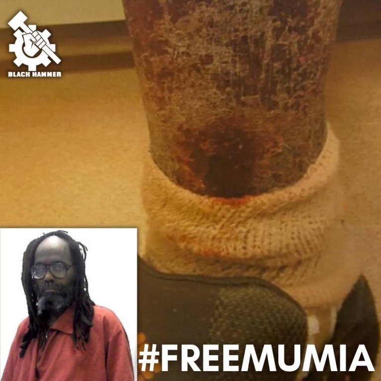 Mumia's organ failure of the skin that was developed while in the colonial concentration camps.