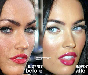 Megan Fox Plastic Surgery Before And After Pictures