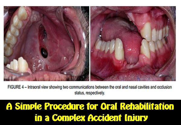 oral-rehabilitation