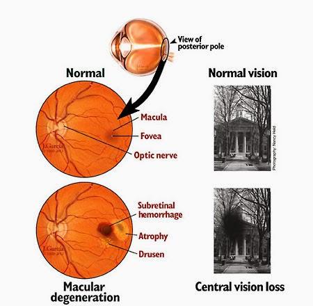 Vitamin Mata Mirtoplus Untuk Degenerasi Makula