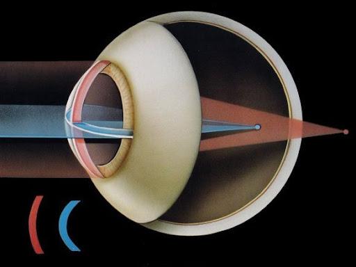 astigmatizmi-i-syrit-1