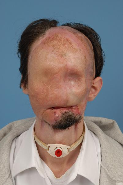 Dallas Wiens: First Full Face Transplant Man