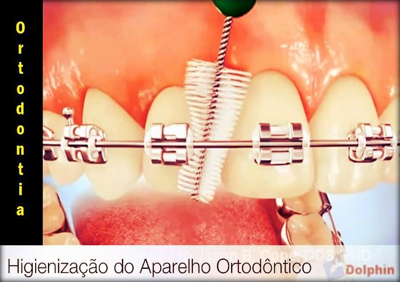 Higiene Ortodontia