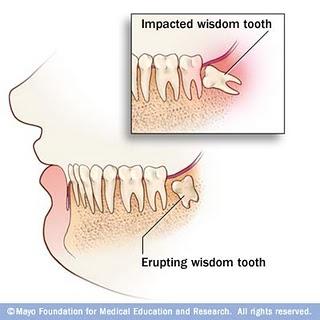 Kedudukan Gigi Geraham Bongsu dalam mulut