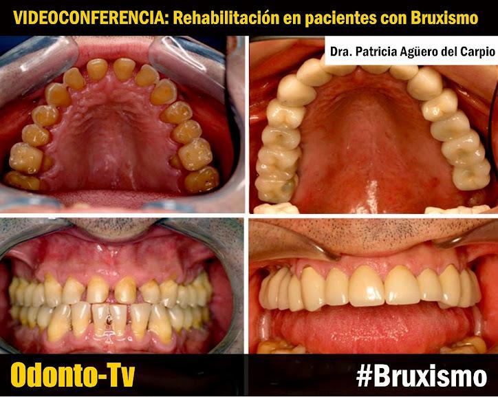rehabilitacion-oral-bruxismo