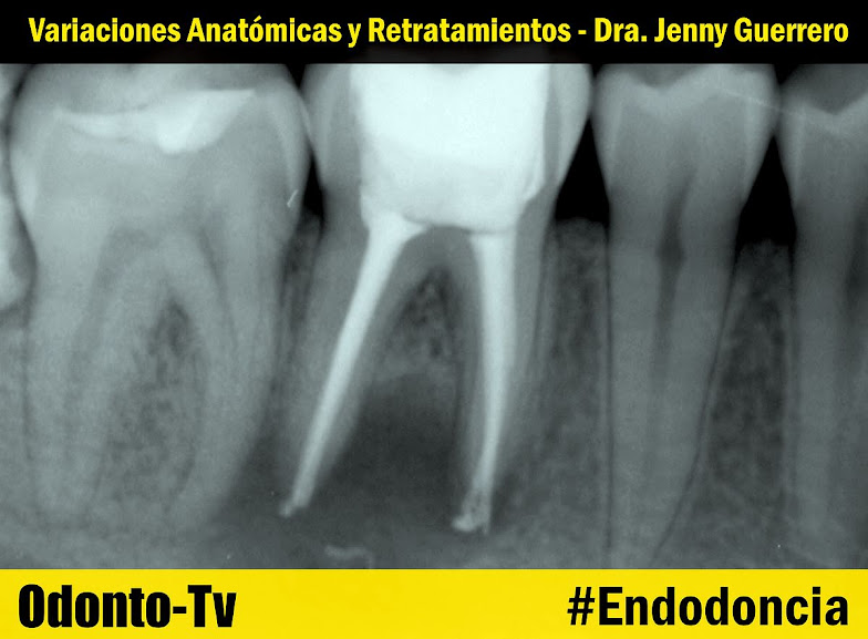 retratamientos-endodoncia