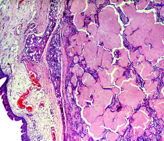 Histologic view of amyloidosis. In horses, intractable hemorrhage from the upper respiratory tract is usual. Generally, amyloid is of the inflammatory type, although the circumstances that lead to it developing only in particular animals remains unclear.