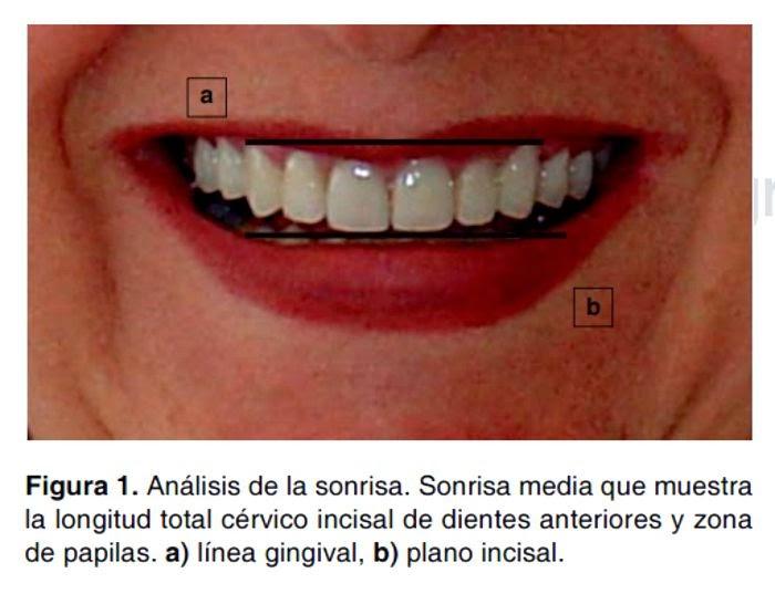 cirugia-plastica-periodontal