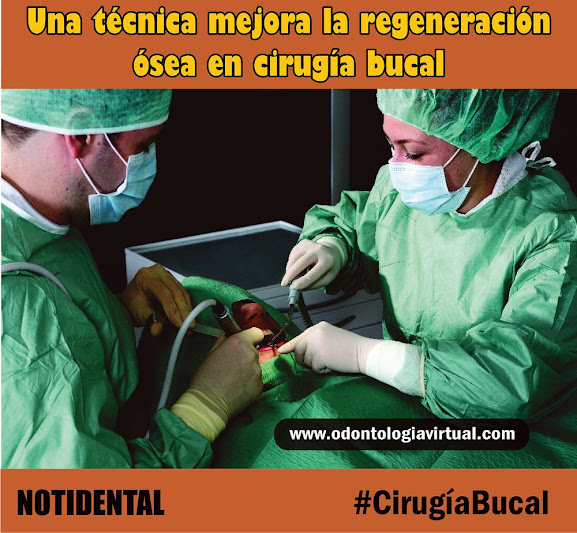 regeneración-ósea-notidental