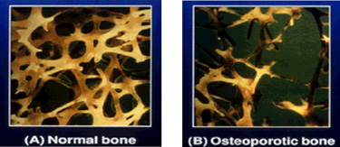 bone and steroid induced osteoporosis essay example Steroid-induced osteoporosis np jones et al 589 figure 2 the age distribution for (a) male and (b) female patients in this series, showing the proportion in each age group with normal bone density, osteopenia and osteoporosis table 1 the underlying uveitis diagnosis diagnosis number of patients % of sample.