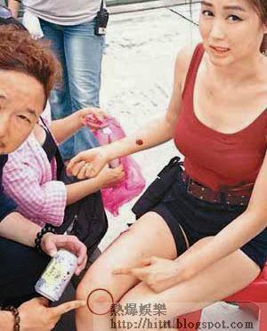 岑麗香雙膝撞石受傷,導演錢國偉立刻呵番。