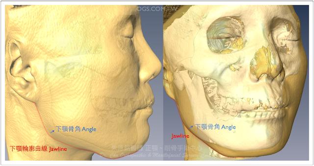 削骨手術,下顎骨雕塑,下巴