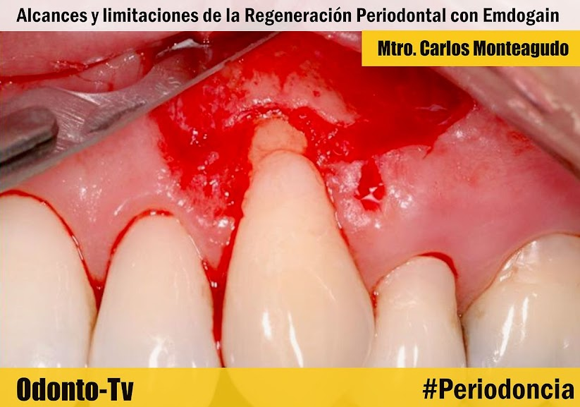 regeneracion-periodontal