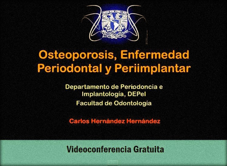osteoporosis-enfermedad-periodontal