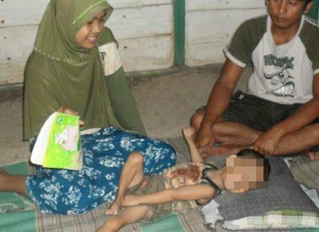 Penderita gizi buruk di Ngawi