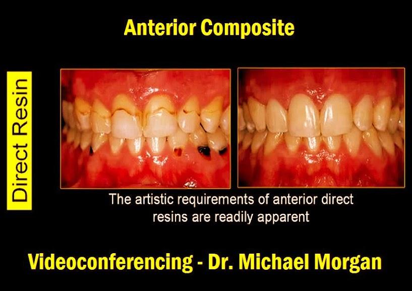 anterior-composite