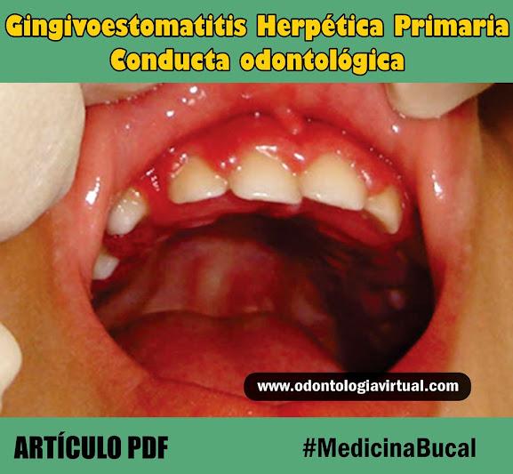 gingivoestomatitis-herpética-primaria