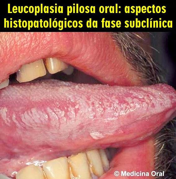 Leucoplasia-Pilosa-Oral