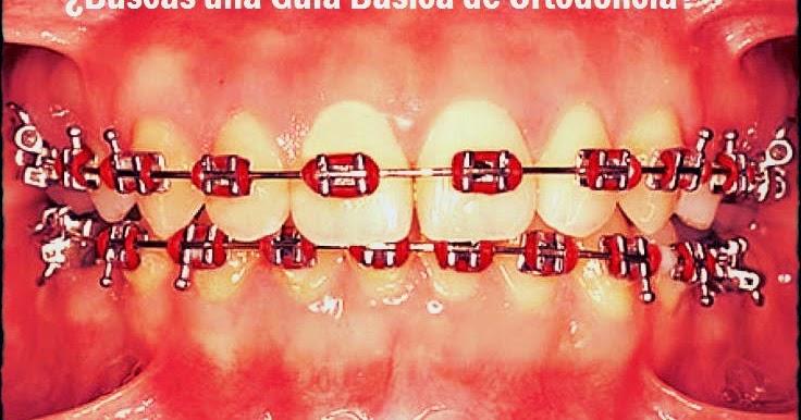 Pdf gu a para el tratamiento de pacientes de ortodoncia for W de porter ortodoncia