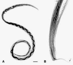 「廣東住血線蟲感染症」的圖片搜尋結果